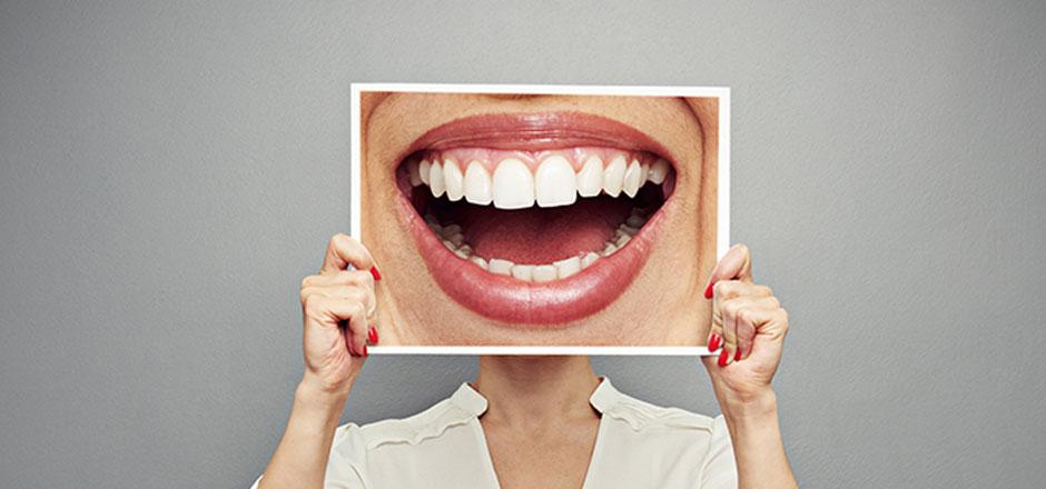 Une prise en charge partielle des prothèses dentaires 6e0588669984